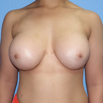 18-24 year old woman treated with Breast Augmentation after 3320563