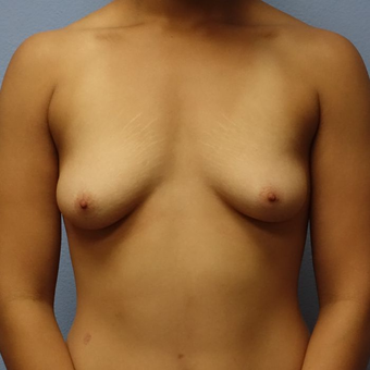 18-24 year old woman treated with Breast Augmentation before 3320563
