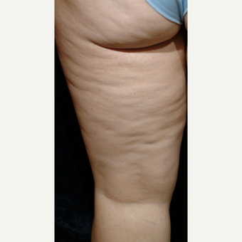 35-44 year old woman treated with Cellulaze before 3220542