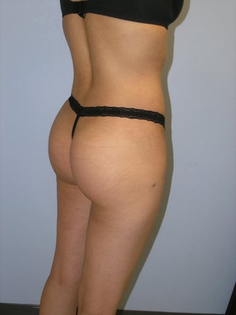 Buttock Augmentation after 163642
