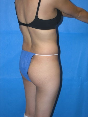 Buttock Augmentation before 163642