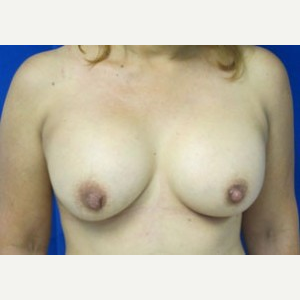 Breast Augmentation after 3054853