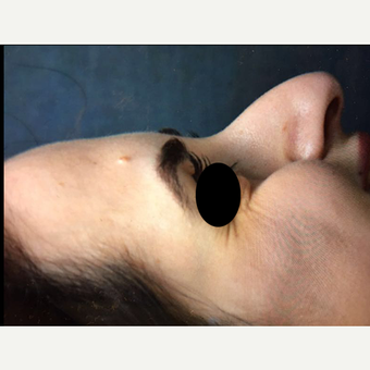 25-34 year old woman treated with Rhinoplasty before 3211764