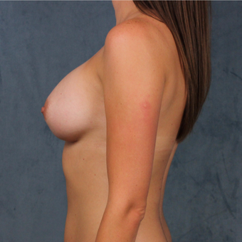 26 year old female wants full breast augmentation with silicone gel implants. after 3045166