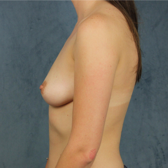 26 year old female wants full breast augmentation with silicone gel implants. before 3045166