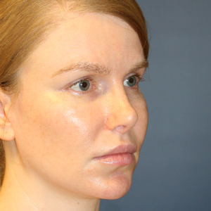 18-24 year old woman treated with Rhinoplasty after 3559795
