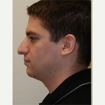 25-34 year old man treated with Rhinoplasty before 3792796