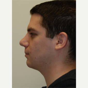 25-34 year old man treated with Rhinoplasty after 3792796