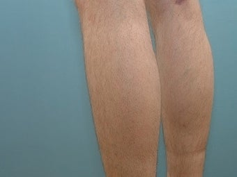 33 Year Old Male Treated for Calf Muscle Lack of Development after 1157132