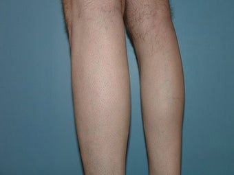 33 Year Old Male Treated for Calf Muscle Lack of Development before 1157132