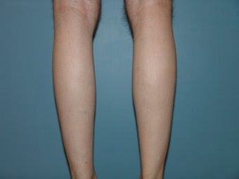 33 Year Old Male Treated for Calf Muscle Lack of Development 1157132