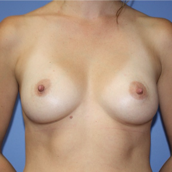 Woman treated with Sientra Breast Implants after 3163545