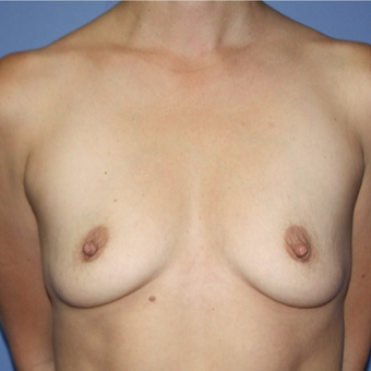 Woman treated with Sientra Breast Implants before 3163545