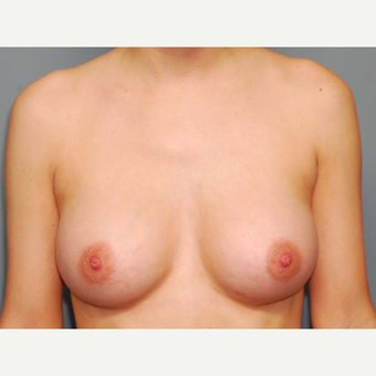 25 y/o Inframammary Sub Muscular Breast Augmentation after 3066066