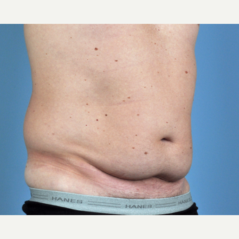 35-44 year old man treated with Tummy Tuck before 3837582