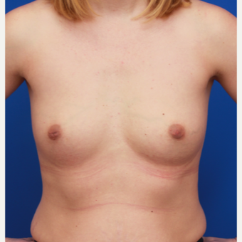 32- year old woman treated with Breast Augmentation before 3004654