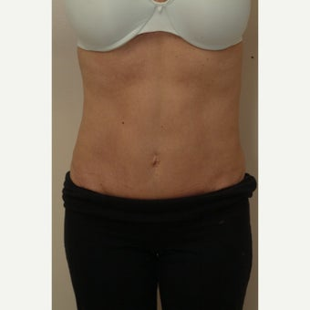 35-44 year old woman treated with Mini Tummy Tuck after 2454044