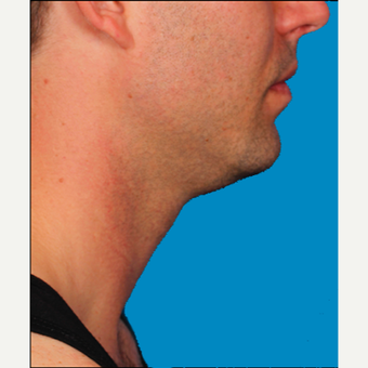 "25-34 year old man treated with Kybella for corruption of sub mental fullness /""double chin"" before 2335023"