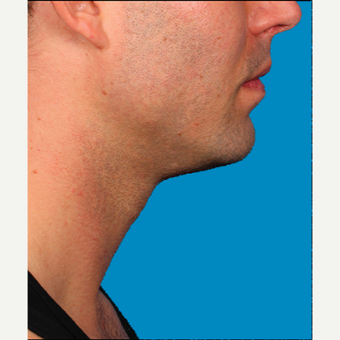 "25-34 year old man treated with Kybella for corruption of sub mental fullness /""double chin"" after 2335023"