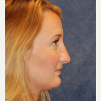 Beautiful 25 year old woman treated with Rhinoplasty before 3141762
