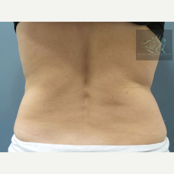 45-54 year old woman treated with SculpSure before 2832331