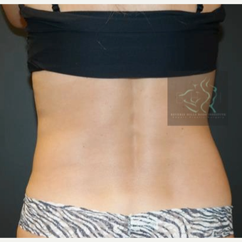 45-54 year old woman treated with SculpSure after 2832331