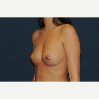 25-34 year old woman treated with Breast Augmentation before 3344135