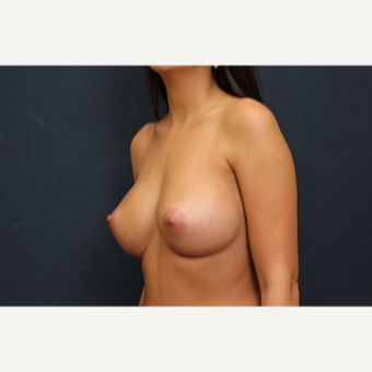 25-34 year old woman treated with Breast Augmentation after 3344135