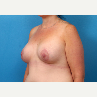 25-34 year old woman treated with Breast Augmentation after 3246966