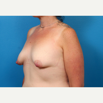 25-34 year old woman treated with Breast Augmentation before 3246966