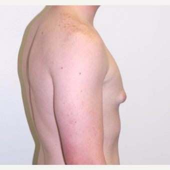 18-24 year old man treated with Male Breast Reduction before 3383156