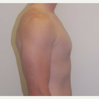 18-24 year old man treated with Male Breast Reduction after 3383156