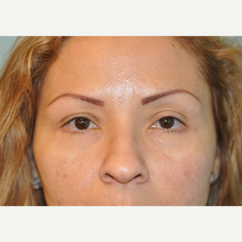 36 year old woman treated with Lower Blepharoplasty (Eyelid Surgery) after 3168577
