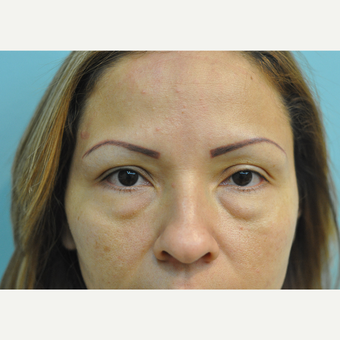 36 year old woman treated with Lower Blepharoplasty (Eyelid Surgery) before 3168577