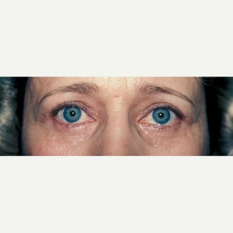55-64 year old treated with Eye Bags Treatment
