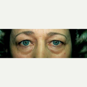 55-64 year old treated with Eye Bags Treatment before 2009943
