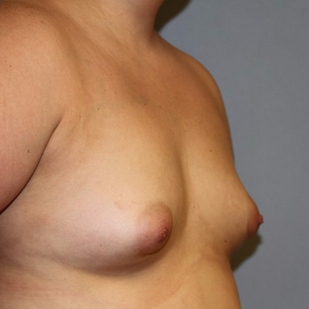 45-54 year old woman treated with Breast Implants before 2878086