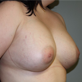 45-54 year old woman treated with Breast Implants after 2878086