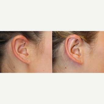 23 year-old female before and 3 months after Ear Surgery (Otoplasty) before 3441471