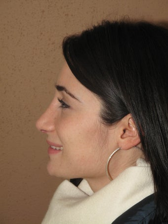 Nose job/ rhinoplasty after 595317