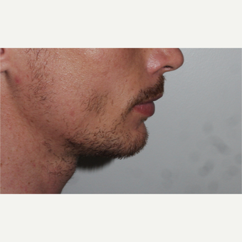 Young man treated with Chin Implant after 3001815