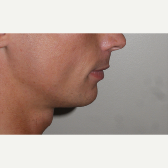 Young man treated with Chin Implant before 3001815