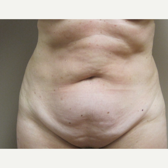 Tummy Tuck before 3650142