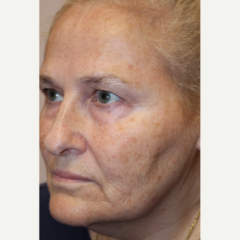 Woman treated with Vampire Facelift before 3385394