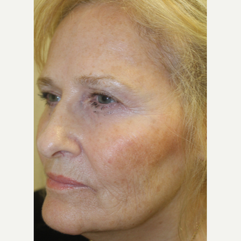 Woman treated with Vampire Facelift after 3385394