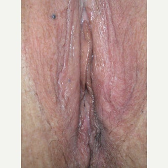 53year old woman treated with Vaginoplasty and perineoplasty after 1553501
