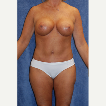 Beautiful 47yr old woman with Bennelli Breast Lift and Tummy Tuck with Liposuction for Mommy Makeove after 3092980
