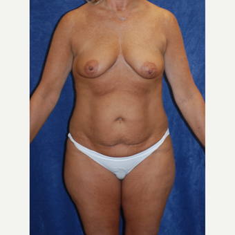 Beautiful 47yr old woman with Bennelli Breast Lift and Tummy Tuck with Liposuction for Mommy Makeove before 3092980