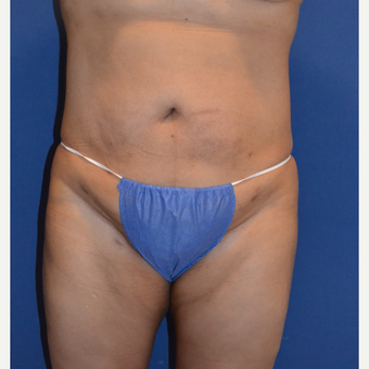 35-44 year old woman treated with Liposuction after 3663661