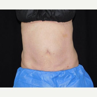 55-64 year old woman treated with CoolSculpting after 2154975